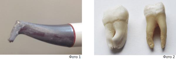 Особенности использования порошковой композиции Double Flow в процедуре профессиональной гигиены полости рта. Статья